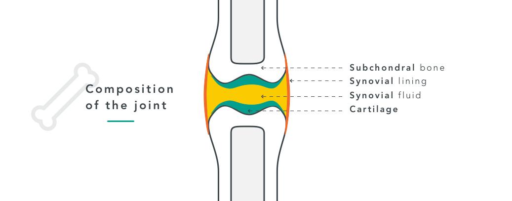 joint arthritis