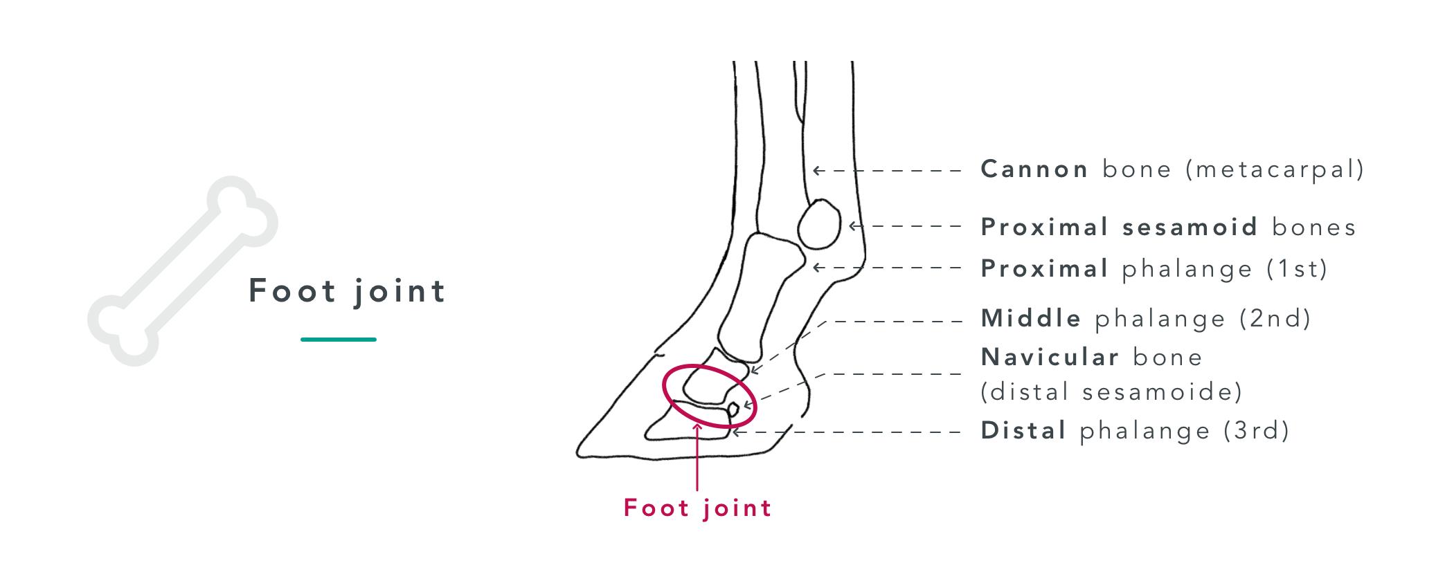 arthritis tendon