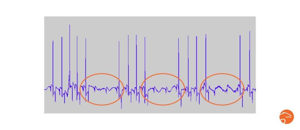 Exemple d'arythmie (bloc atrio-ventriculaires), mesurées chez un cheval avant le travail, grâce au cardiofréquencemètre Equisense Motion S