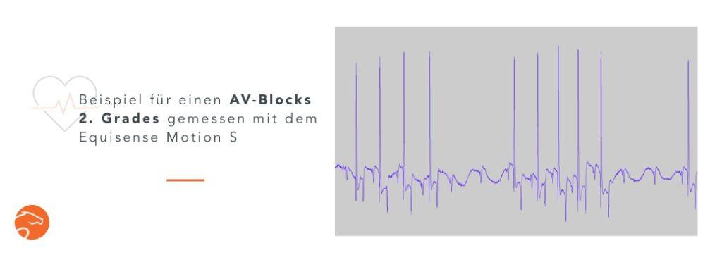 Atrioventrikulärer Block (AV-Block) 2. Grades