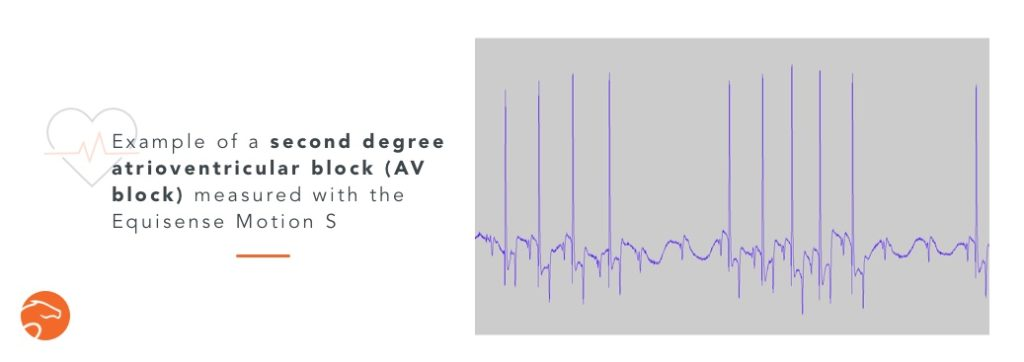 second degree atrioventricular block, a common arrhythmia in horses