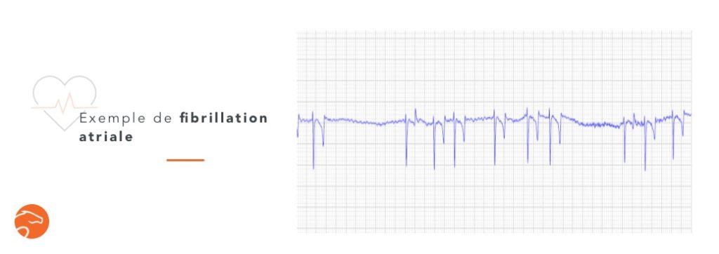 Fibrillation atriale chez le cheval, arythmie cardiaque fréquente à l'effort
