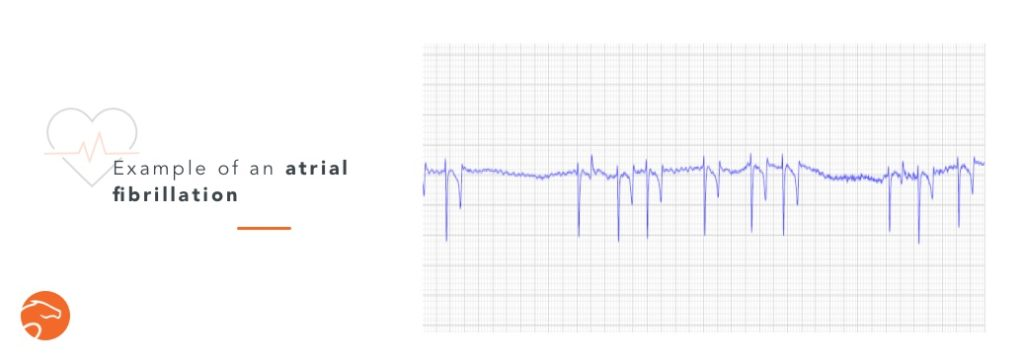 ECG issued from a veterinarian thesis by Maud de Lagarde, 2007