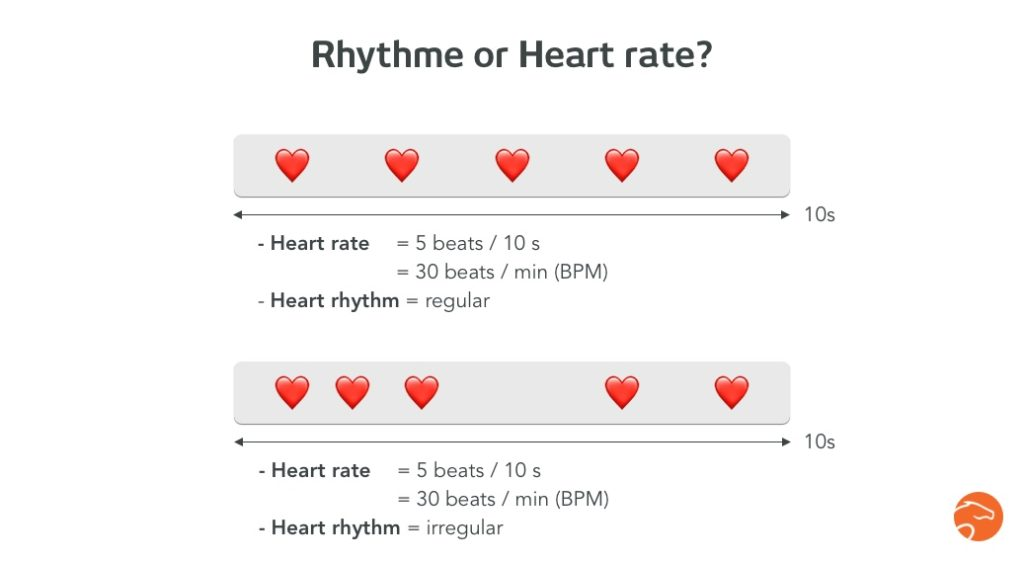 Difference between rhythm and heart rate